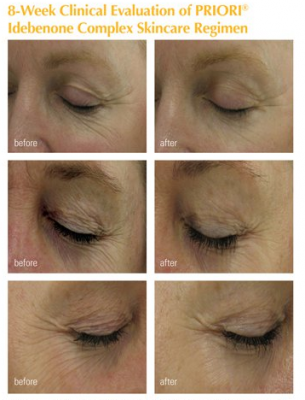 8 Week clinical evaluation of PRIORI Idebenone Complex Skincare Regimen